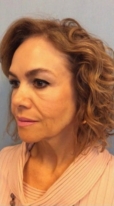 Facial Rejuvenation Gallery - Patient 10894739 - Image 1