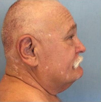 Facial Rejuvenation Gallery - Patient 10894740 - Image 1