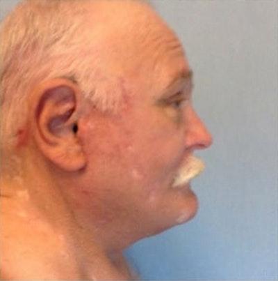 Facial Rejuvenation Gallery - Patient 10894740 - Image 2