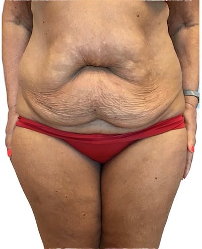 Abdominoplasty Gallery - Patient 13948275 - Image 1