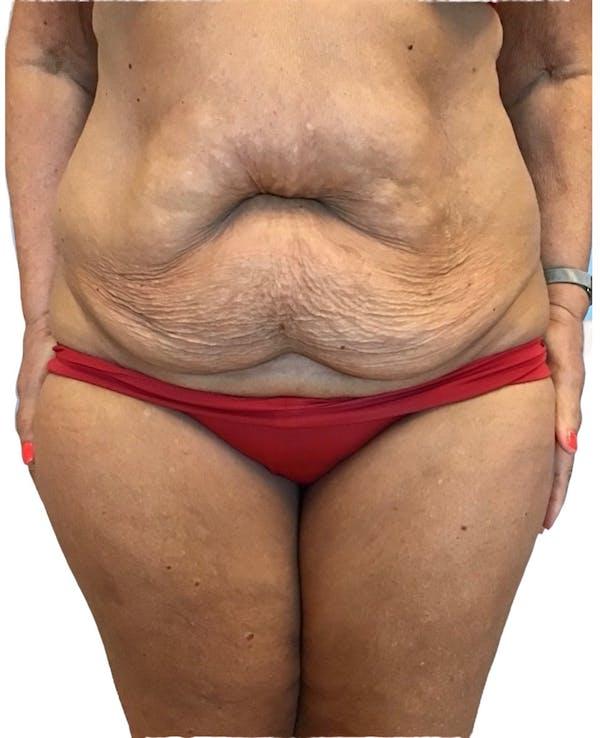 Abdominoplasty Gallery - Patient 13948275 - Image 1