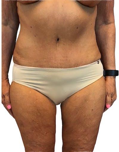 Abdominoplasty Gallery - Patient 13948275 - Image 2