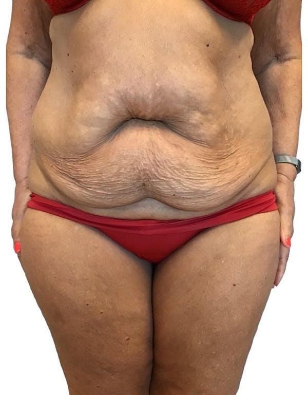 Abdominoplasty Gallery - Patient 13948275 - Image 3