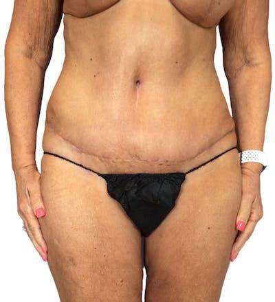 Abdominoplasty Gallery - Patient 13948275 - Image 4