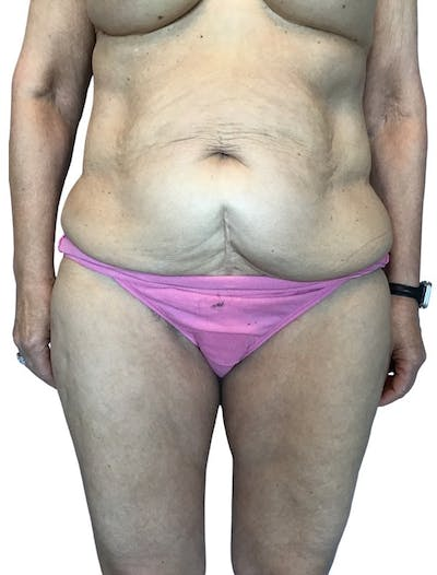 Abdominoplasty Gallery - Patient 13948276 - Image 1