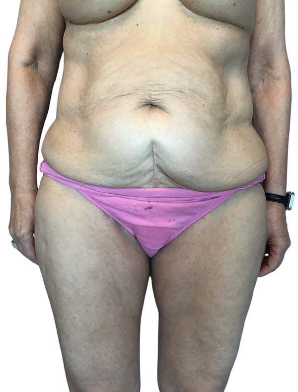 Abdominoplasty Gallery - Patient 13948276 - Image 1
