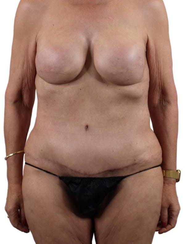 Abdominoplasty Gallery - Patient 13948276 - Image 2