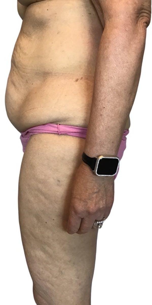Abdominoplasty Gallery - Patient 13948276 - Image 3
