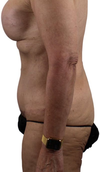 Abdominoplasty Gallery - Patient 13948276 - Image 4