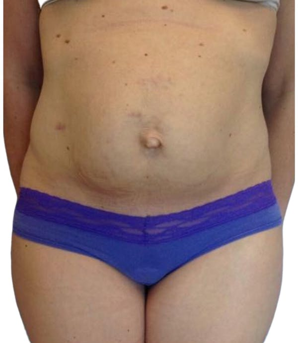 Abdominoplasty Gallery - Patient 13948277 - Image 1