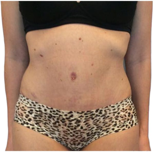 Abdominoplasty Gallery - Patient 13948277 - Image 2