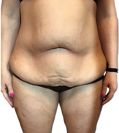 Abdominoplasty Gallery - Patient 13948278 - Image 1