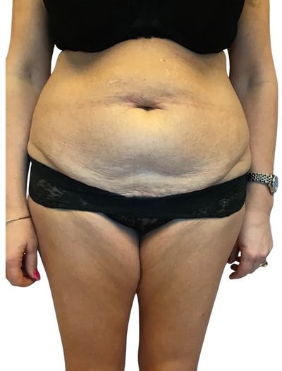 Abdominoplasty Gallery - Patient 13948279 - Image 1