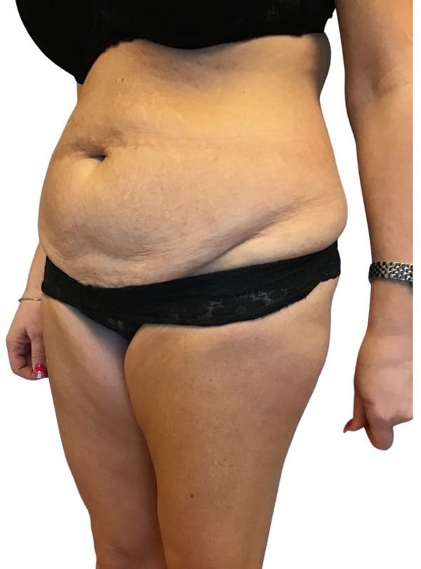 Abdominoplasty Gallery - Patient 13948279 - Image 3