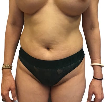 Abdominoplasty Gallery - Patient 13948280 - Image 1