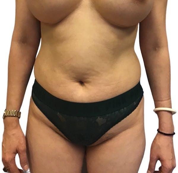 Abdominoplasty Gallery - Patient 13948280 - Image 1
