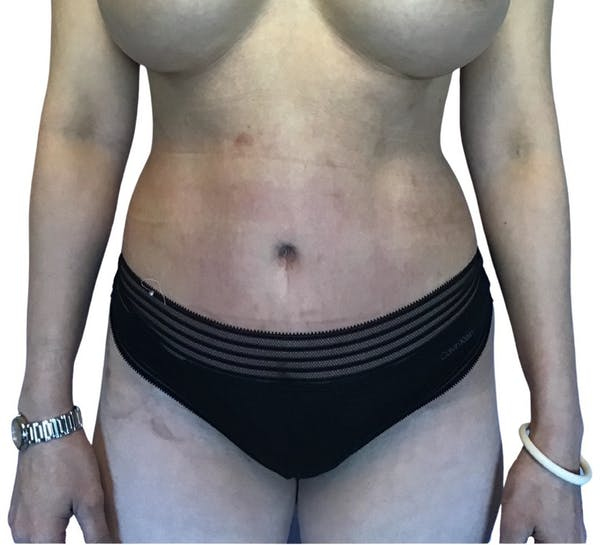 Abdominoplasty Gallery - Patient 13948280 - Image 2