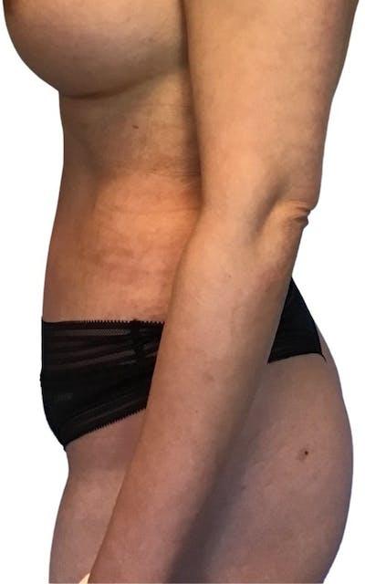 Abdominoplasty Gallery - Patient 13948280 - Image 4