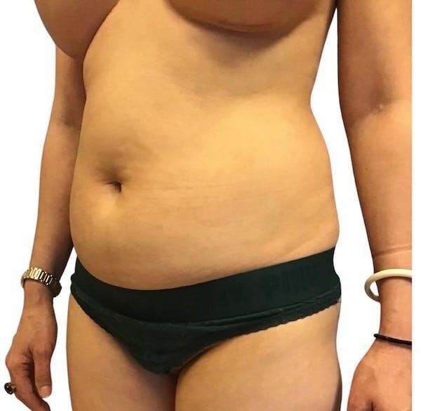 Abdominoplasty Gallery - Patient 13948280 - Image 5