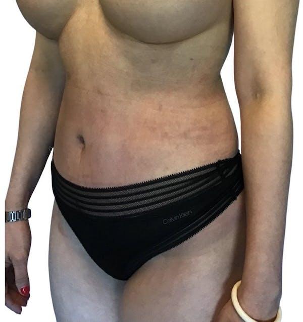 Abdominoplasty Gallery - Patient 13948280 - Image 6