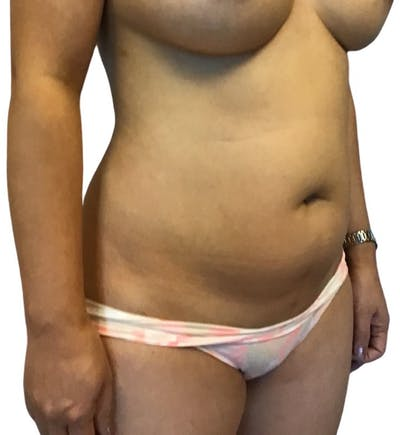 Abdominoplasty Gallery - Patient 13948281 - Image 1