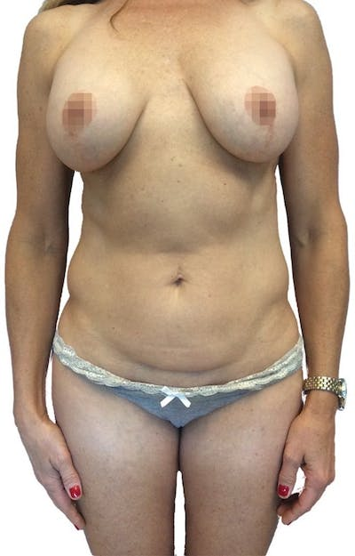 Abdominoplasty Gallery - Patient 13948282 - Image 1