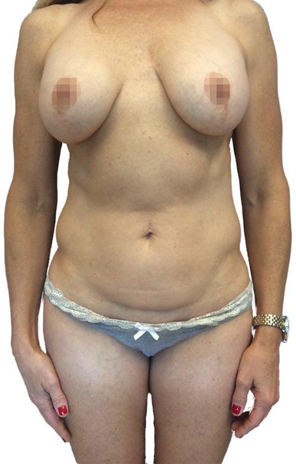 Abdominoplasty Gallery - Patient 13948282 - Image 1