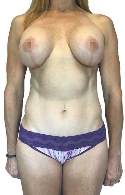 Abdominoplasty Gallery - Patient 13948282 - Image 2
