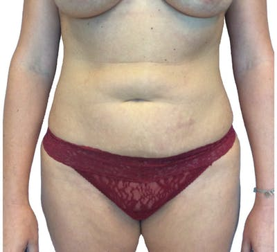 Abdominoplasty Gallery - Patient 13948283 - Image 1
