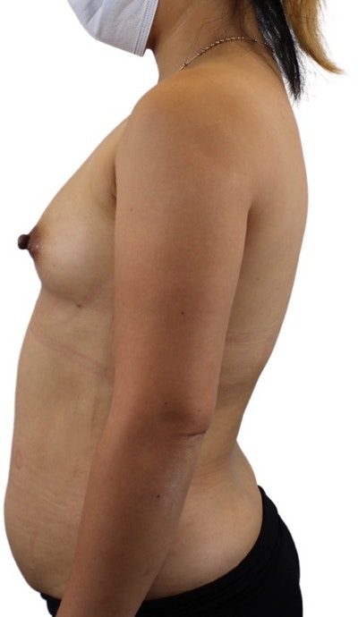Liposuction Gallery - Patient 13948284 - Image 1