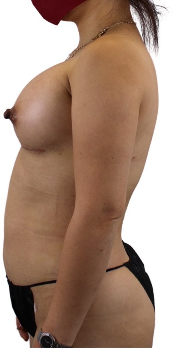 Liposuction Gallery - Patient 13948284 - Image 2