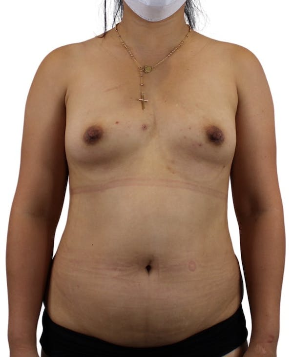 Liposuction Gallery - Patient 13948284 - Image 3