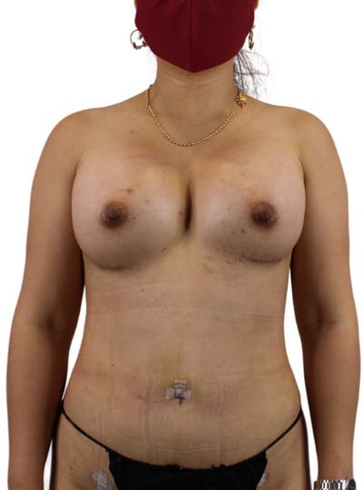 Liposuction Gallery - Patient 13948284 - Image 4