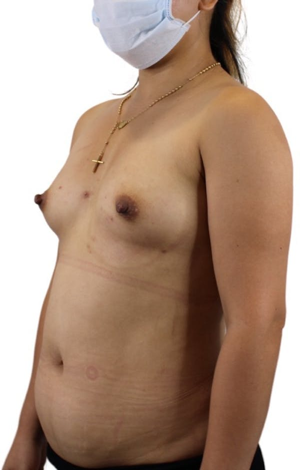 Liposuction Gallery - Patient 13948284 - Image 5