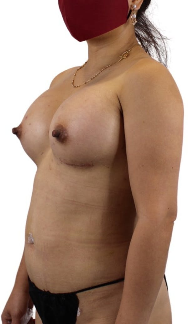 Liposuction Gallery - Patient 13948284 - Image 6