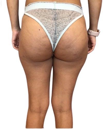 Brazilian Butt Lift Gallery - Patient 13948288 - Image 2