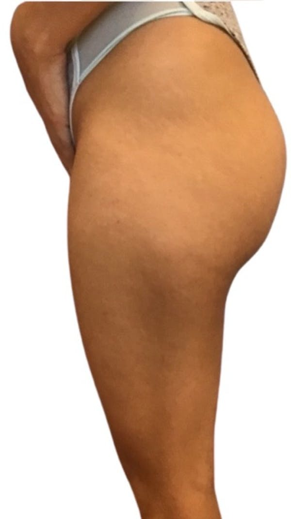 Brazilian Butt Lift Gallery - Patient 13948288 - Image 3
