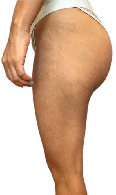 Brazilian Butt Lift Gallery - Patient 13948288 - Image 4