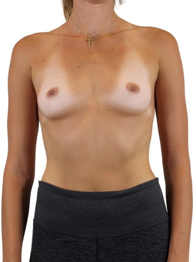 Breast Augmentation Gallery - Patient 13948295 - Image 1