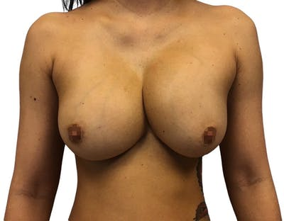Breast Augmentation Gallery - Patient 13948296 - Image 1