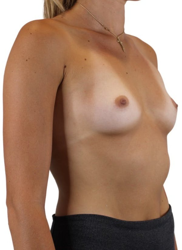 Breast Augmentation Gallery - Patient 13948295 - Image 3