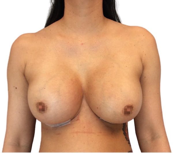 Breast Augmentation Gallery - Patient 13948296 - Image 2