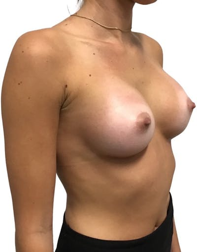 Breast Augmentation Gallery - Patient 13948295 - Image 4