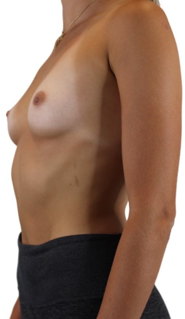 Breast Augmentation Gallery - Patient 13948295 - Image 5