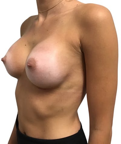 Breast Augmentation Gallery - Patient 13948295 - Image 6