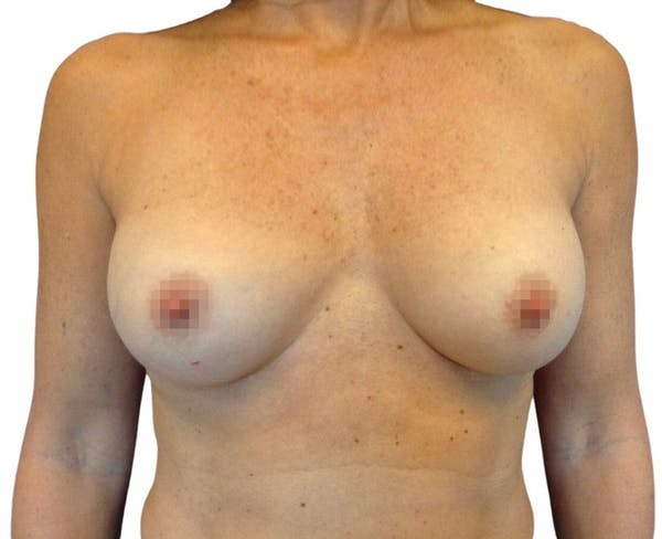 Breast Augmentation Gallery - Patient 13948297 - Image 1