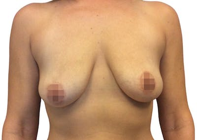 Breast Augmentation Gallery - Patient 13948298 - Image 1