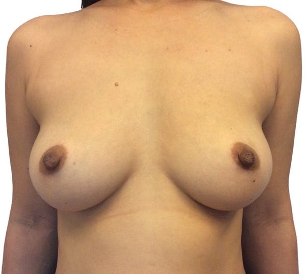 Breast Augmentation Gallery - Patient 13948299 - Image 1