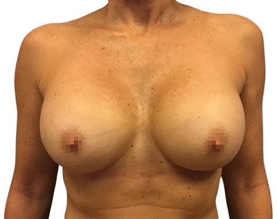 Breast Augmentation Gallery - Patient 13948297 - Image 2