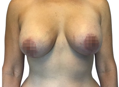Breast Augmentation Gallery - Patient 13948298 - Image 2